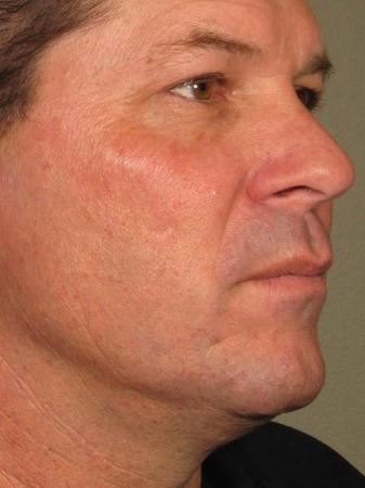 Ultherapy® - Face: Patient 13 - After Image 1