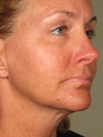Ultherapy® - Face: Patient 12 - After 1