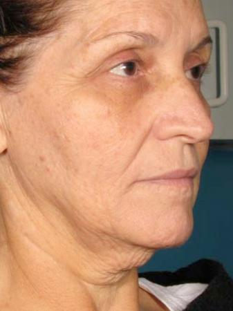 Ultherapy® - Face: Patient 1 - Before Image
