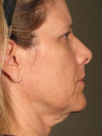 Ultherapy® - Face: Patient 19 - Before Image 1