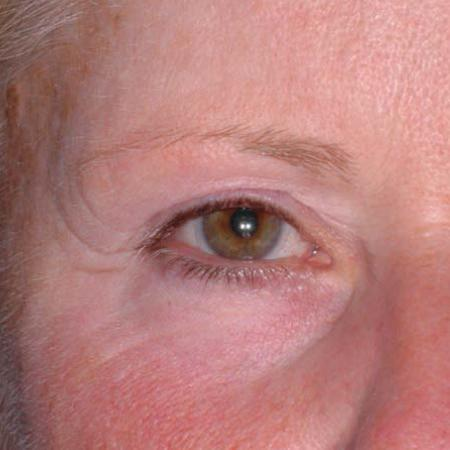 Ultherapy® - Brow: Patient 7 - Before Image