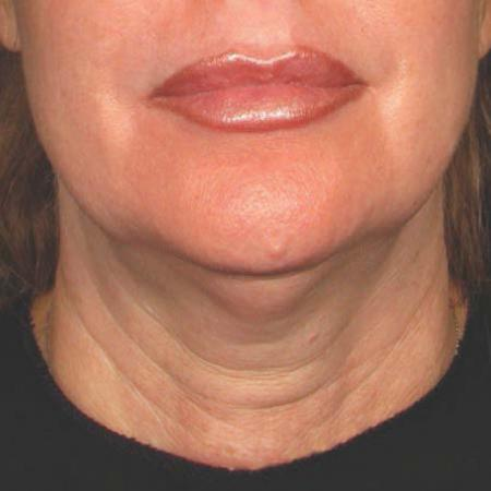 Ultherapy® - Chin: Patient 25 - Before Image