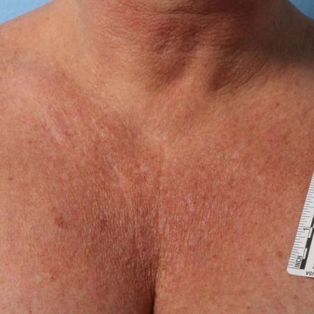 Ultherapy® - Décolletage: Patient 7 - Before Image