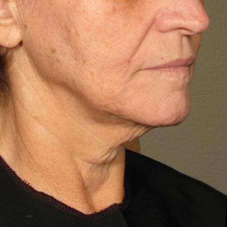 Ultherapy® - Chin: Patient 36 - After Image 1