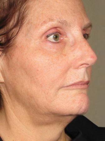Ultherapy® - Face: Patient 8 - After Image