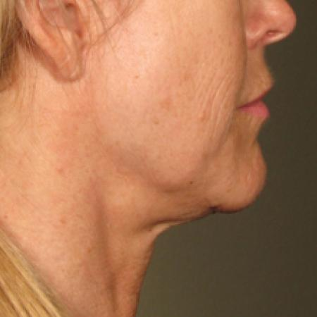 Ultherapy® - Chin: Patient 17 - Before Image