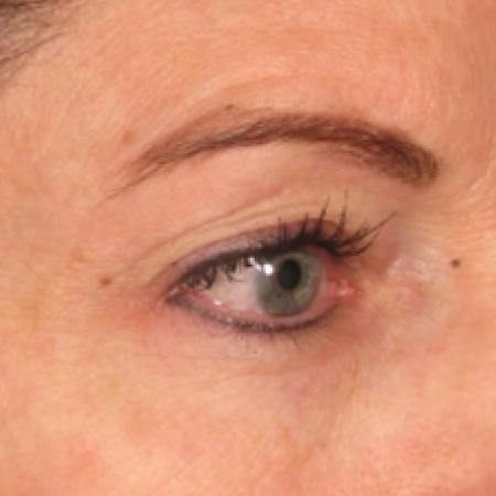 Ultherapy® - Brow: Patient 3 - After Image
