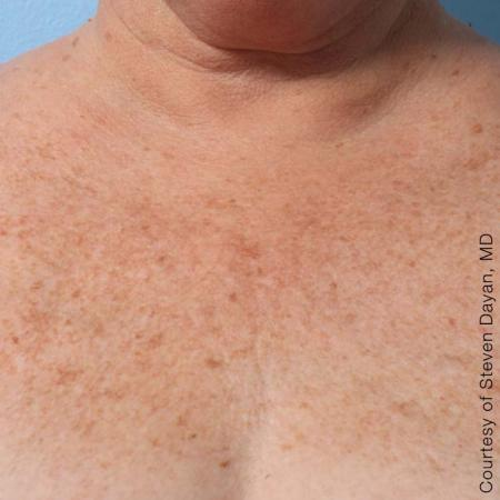 Ultherapy® - Décolletage: Patient 5 - After Image