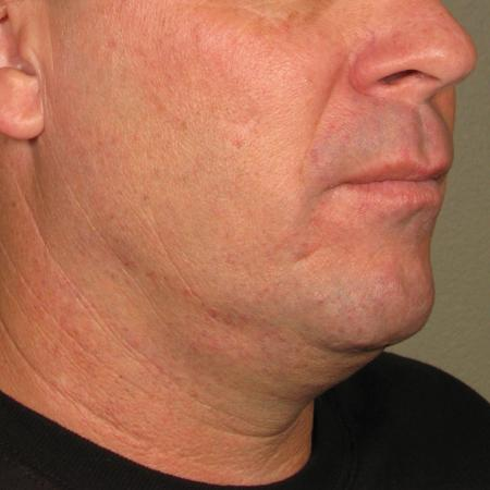 Ultherapy® - Chin: Patient 27 - Before Image