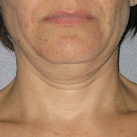 Ultherapy® - Neck: Patient 3 - Before Image
