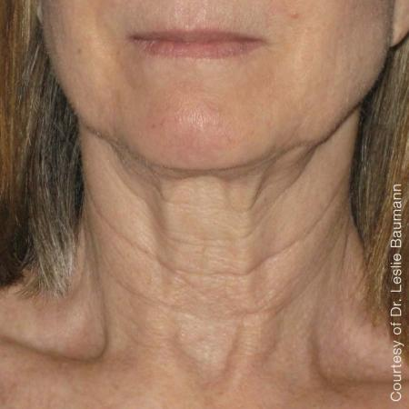 Ultherapy® - Neck: Patient 10 - After Image