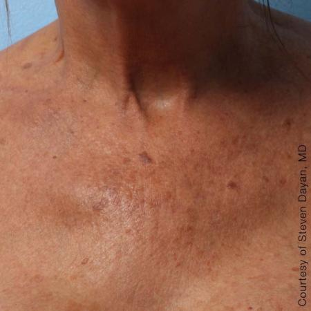 Ultherapy® - Décolletage: Patient 3 - After Image