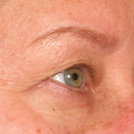 Ultherapy® - Brow: Patient 4 - Before Image