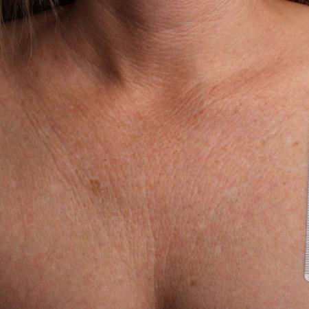 Ultherapy® - Décolletage: Patient 18 - Before Image 1