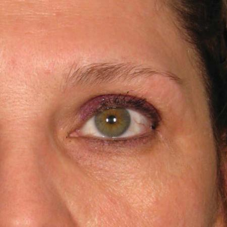 Ultherapy® - Brow: Patient 12 - Before Image 1