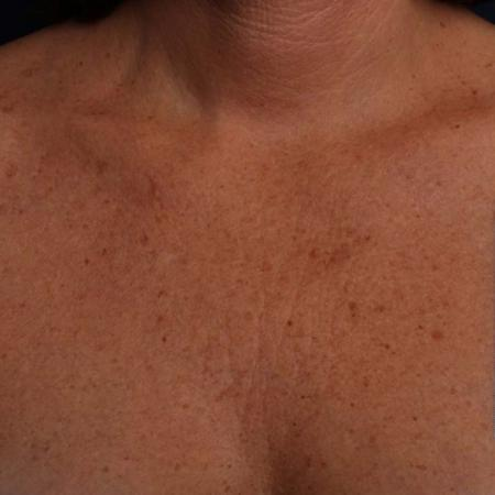 Ultherapy® - Décolletage: Patient 14 - Before 1