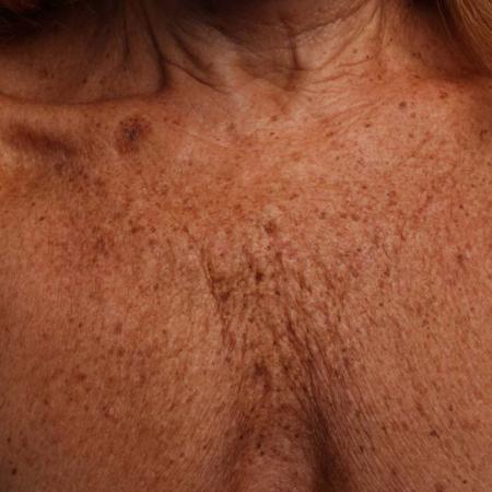 Ultherapy® - Décolletage: Patient 12 - Before Image 1