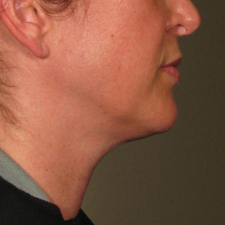 Ultherapy® - Chin: Patient 21 - After Image