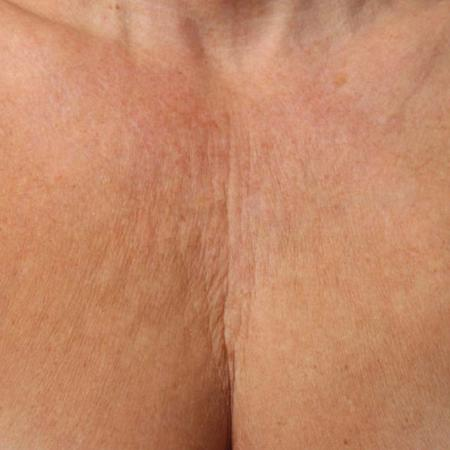 Ultherapy® - Décolletage: Patient 4 - Before Image