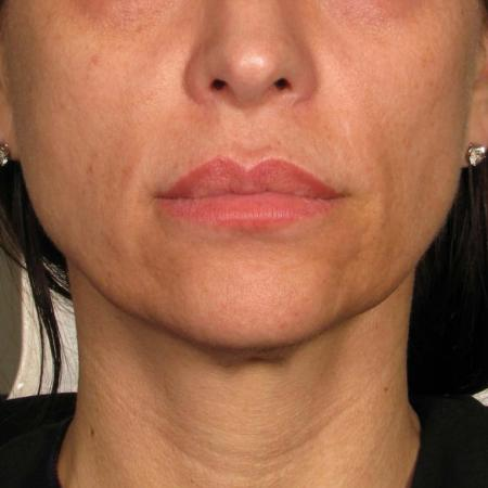 Ultherapy® - Chin: Patient 39 - After 1