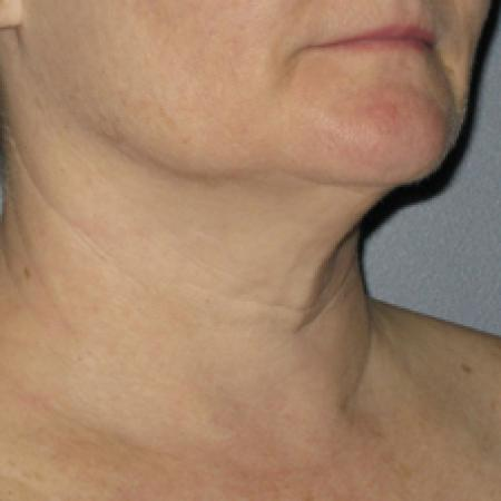 Ultherapy® - Neck: Patient 2 - Before Image