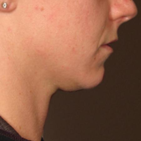 Ultherapy® - Chin: Patient 15 - Before Image 1