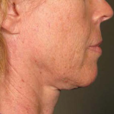Ultherapy® - Chin: Patient 32 - Before Image 1