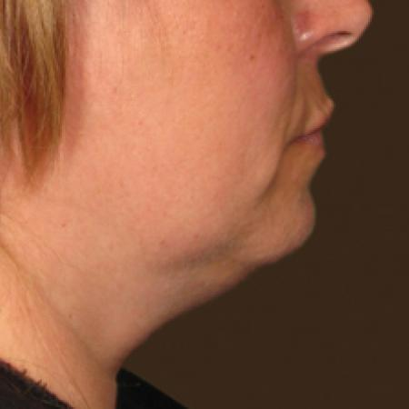 Ultherapy® - Chin: Patient 8 - Before Image