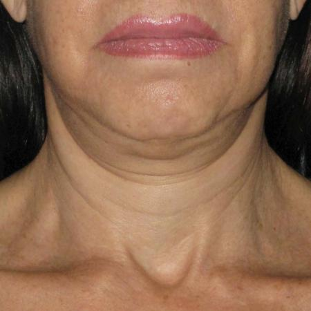 Ultherapy® - Neck: Patient 7 - Before Image