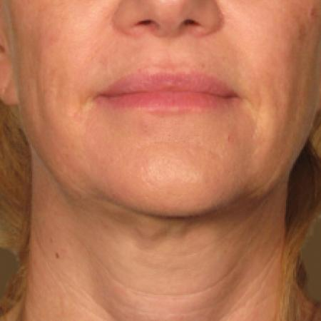 Ultherapy® - Chin: Patient 10 - After Image