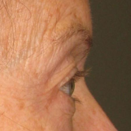 Ultherapy® - Brow: Patient 2 - Before Image