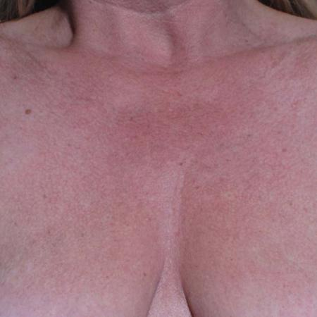 Ultherapy® - Décolletage: Patient 1 - Before Image
