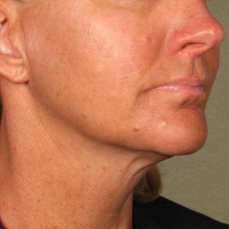 Ultherapy® - Chin: Patient 24 - After Image 1