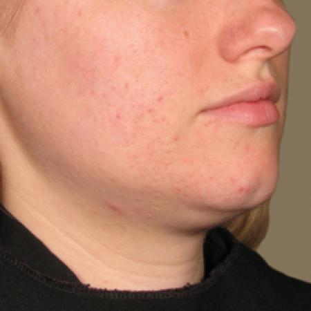 Ultherapy® - Chin: Patient 16 - After Image 1
