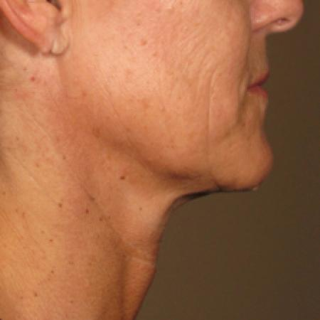 Ultherapy® - Chin: Patient 2 - After Image
