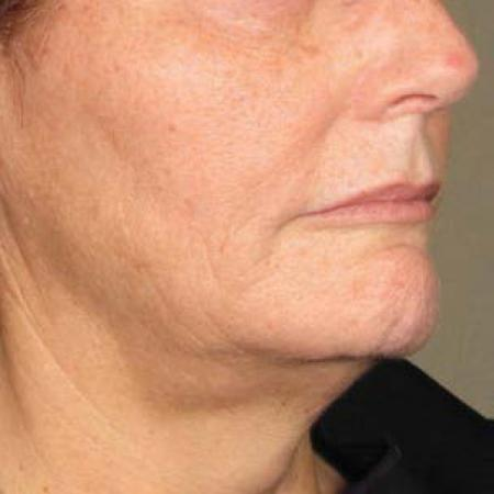 Ultherapy® - Chin: Patient 20 - After Image 1