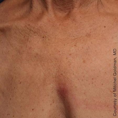 Ultherapy® - Décolletage: Patient 13 - After Image 1