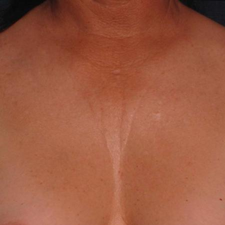 Ultherapy® - Décolletage: Patient 2 - Before Image