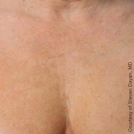 Ultherapy® - Décolletage: Patient 4 - After Image