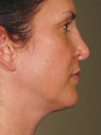 Ultherapy® - Face: Patient 9 - After Image