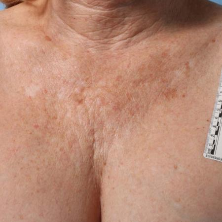 Ultherapy® - Décolletage: Patient 6 - Before Image
