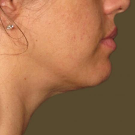 Ultherapy® - Chin: Patient 9 - After Image