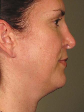 Ultherapy® - Face: Patient 9 - Before Image