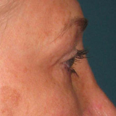 Ultherapy® - Brow: Patient 11 - Before Image 1