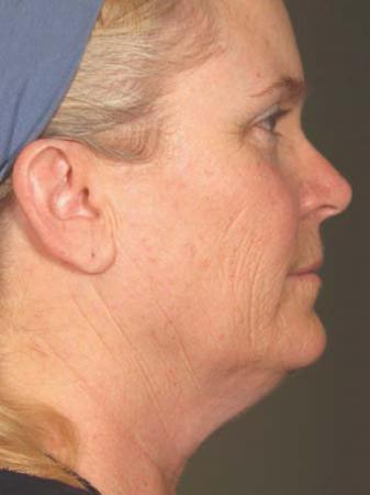 Ultherapy® - Face: Patient 18 - After Image 1