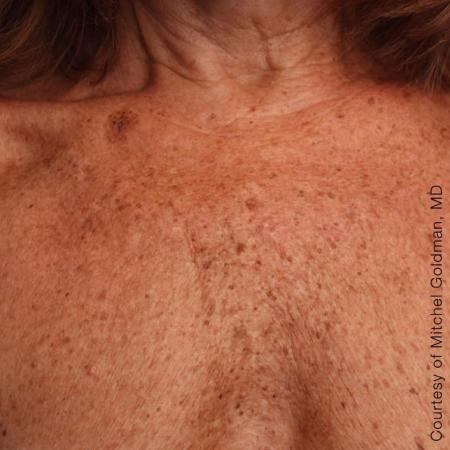 Ultherapy® - Décolletage: Patient 12 - After Image 1