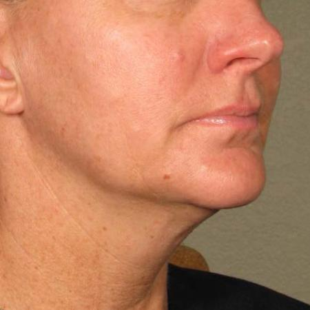 Ultherapy® - Chin: Patient 24 - Before Image