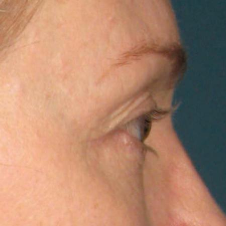 Ultherapy® - Brow: Patient 5 - After Image