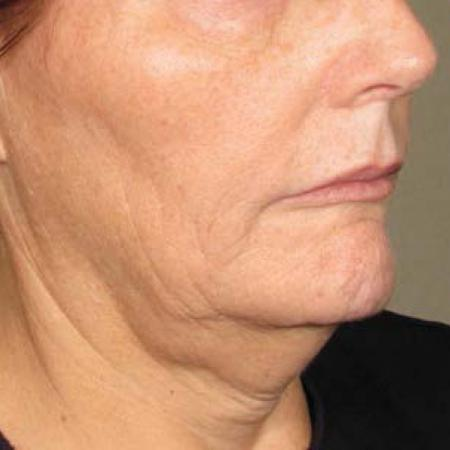 Ultherapy® - Chin: Patient 20 - Before Image 1