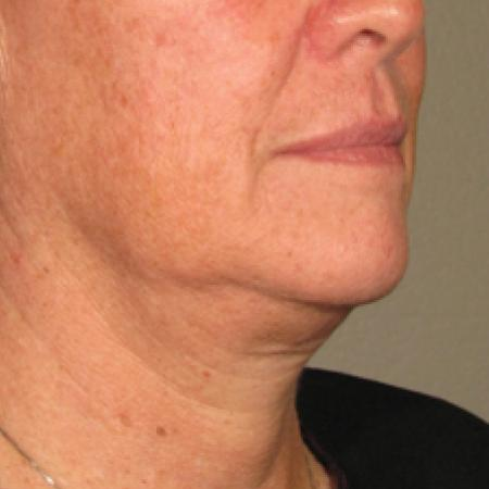 Ultherapy® - Chin: Patient 6 - Before Image